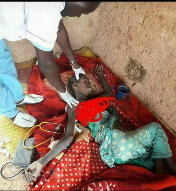 أحد المصابين بسوء التغذية في قرية الزرافية شرقي موريتانيا