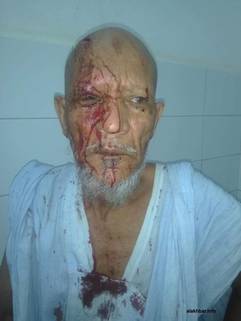 ولد سيدي أحمد بعيد أصابته البارحة بسكين على الرأس على يد عصابة تلصص من عدة أشخاص