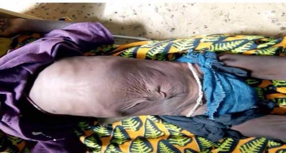 صور لأحد المصابين بسوء التغذية في قرية الزرافية بالحوض الشرقي