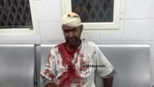أحد المصابين في النزاع مساء اليوم بعيد تلقيه العلاج في مستشفى الشيخ زايد بنواكشوط